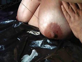 केटी स्तन यातना