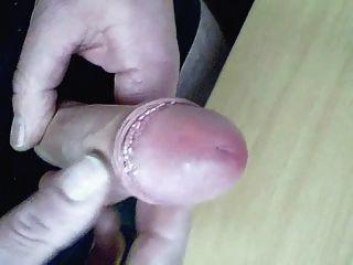 चमड़ी वांक